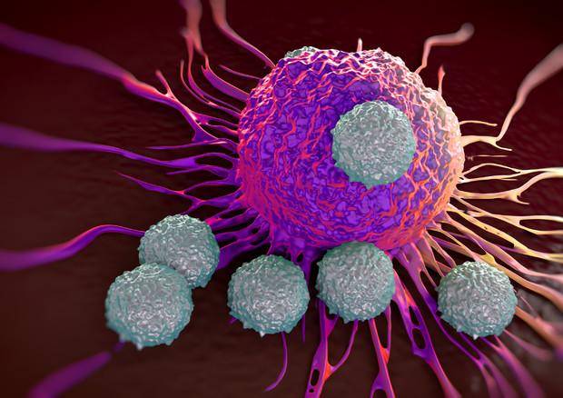 Leucemia: approvata la prima terapia genica