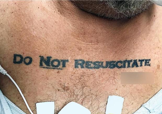 Uomo con tatuaggio 'Non rianimare' © ANSA