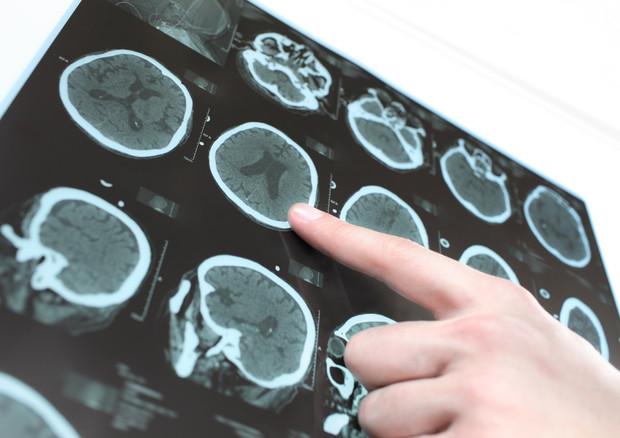 morbo di Parkinson © Ansa
