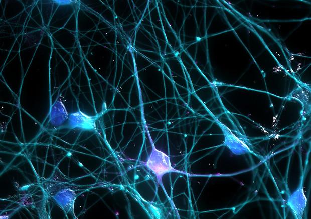 Stato vegetativo, i neuroni della corteccia si 'inceppano'  © Ansa