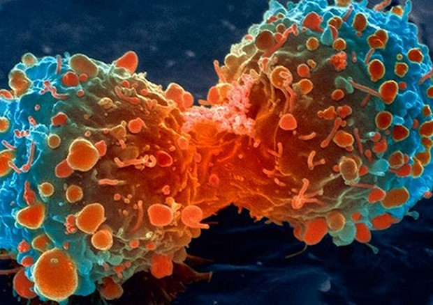 Cellula del tumore del polmone in fase di divisione