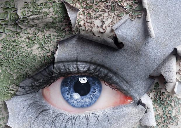 Più dell'80% delle malattie dell'occhio possono essere curate e prevenute © Ansa