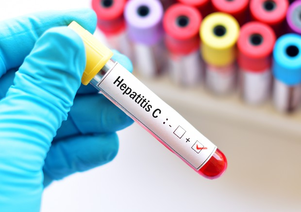 Hepatitis C test © Ansa