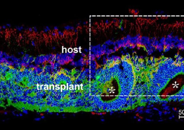 In rosso le cellule del ratto e in verde il tessuto fetale trapiantato (fonte: Foik et al., JNeurosci, 2018) © Ansa