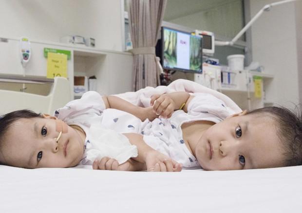 Separate due gemelline siamesi di 15 mesi: l'intervento è durato sei ore