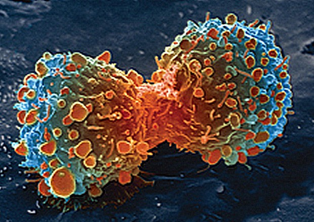 The moment of cell division during cancer (Source: United States: National Institutes of Health) © Ansa