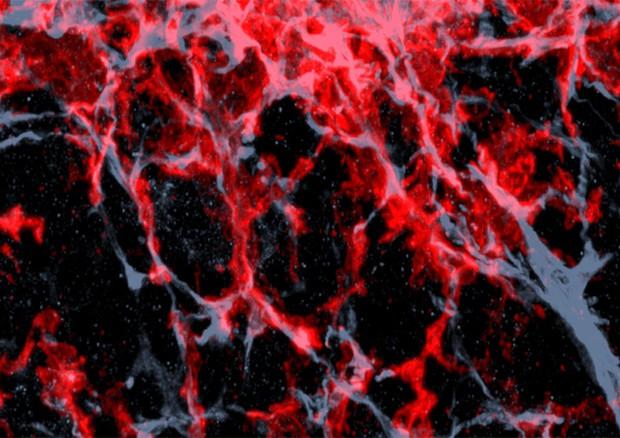 Tessuto tumorale di topo nel quale sono evidenziati i macrofaci, le cellule del sistema immunitario che vengono indotte ad aiutare la crescita dei tumori (fonte: Tim Lämmermann, Max Planck Institute of Biochemistry) © Ansa