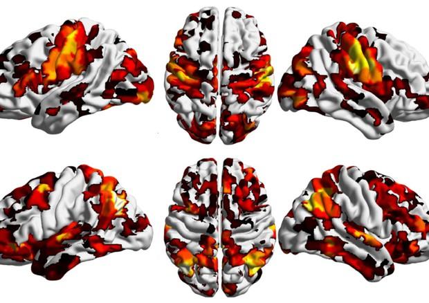 Cervello, trovata la 'culla' della schizofrenia (Credit: IIT) © Ansa