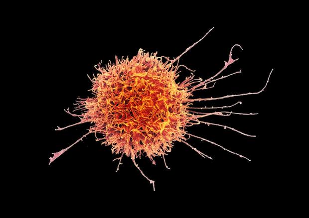 Una cellula immunitaria umana (fonte: NIH Image Gallery) © Ansa