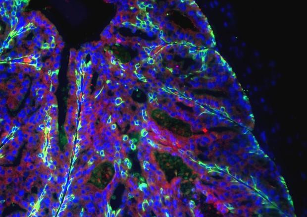 Cellule del tumore della prostata (fonte: Davide Ruggero, università della California a San Francisco) © Ansa