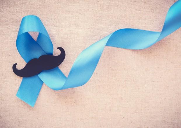 Ru prostata - Trattamento dello stadio prostatica adenoma 1