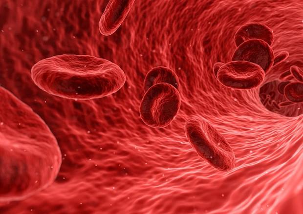 Un chip permette di riconoscere nel sangue le copie extra del cromosoma 21 e diagnosticare la sindrome di Down in modo non invasivo (fonte: Pixabay)  © Ansa
