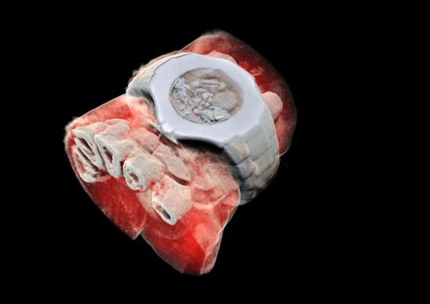 Il polso del fisico Phil Butler visto grazie alla radiografia 3D a colori (fonte: Mars Bioimaging Ltd.) © Ansa