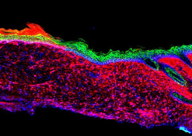 Le cellule della ferita, evidenziate in rosso, vengono riprogrammate in cellule precursori della pelle, in verde (fonte: Salk Institute) © Ansa