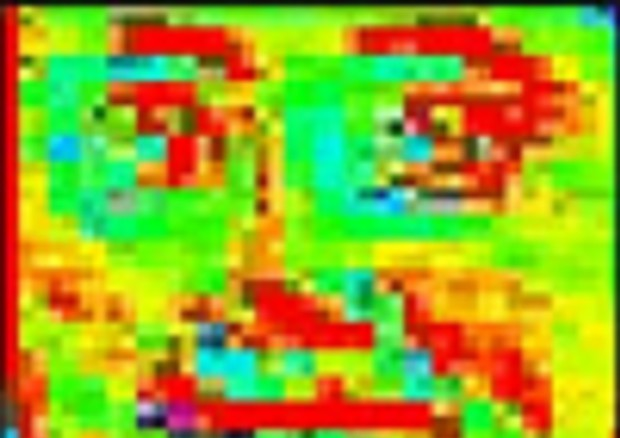 Esempio delle caratteristiche facciali legate a una malattie genetica, evidenziate nel viso di un bambino dal programma DeepGestalt (fonte: Y. Gurovich et al, Nature Medicine) © Ansa