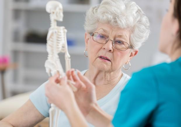 Giornata osteoporosi, nel mondo una frattura ogni 3 secondi © Ansa