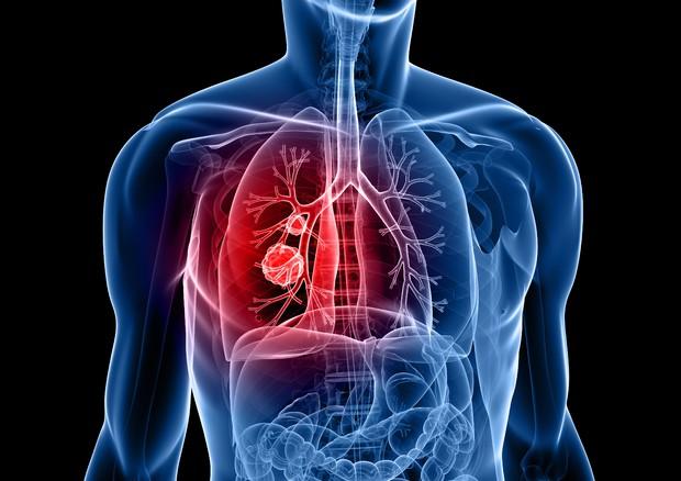 Tumori al polmone: nuove speranze da un farmaco