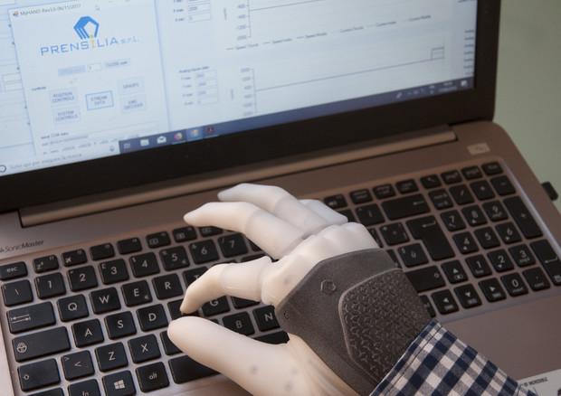 La mano robotica permanente può essere controllata anche per eseguire movimenti complessi (fonte: Prensilia, Scuola Superiore Sant'Anna, DeTOP project) © Ansa