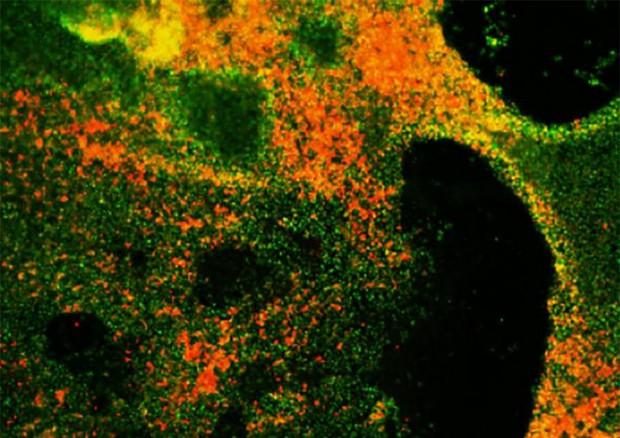 Le cellule del tumore del polmone a piccole cellule riprodotto in provetta (fonte: Chen et al., 2019) © Ansa