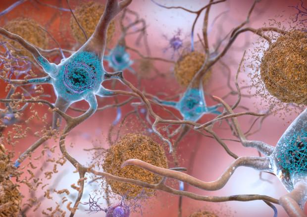 Rappresentazione artistica delle placche dell'Alzheimer (fonte: NIH Image Gallery) © Ansa