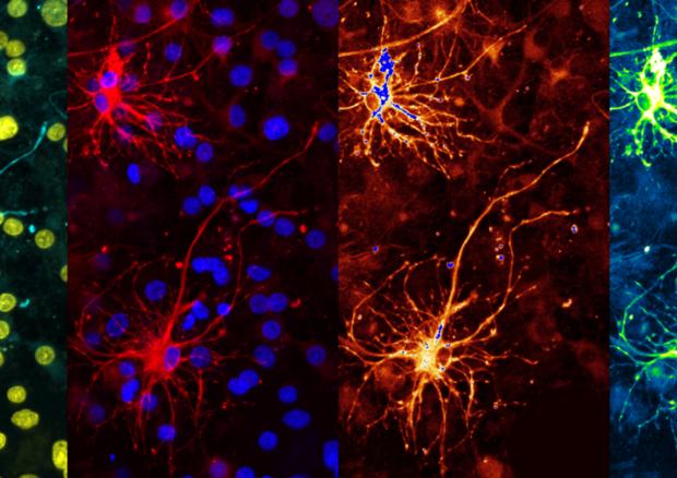Neuroni (fonte: Enricobagnoli, Wikipedia) © Ansa