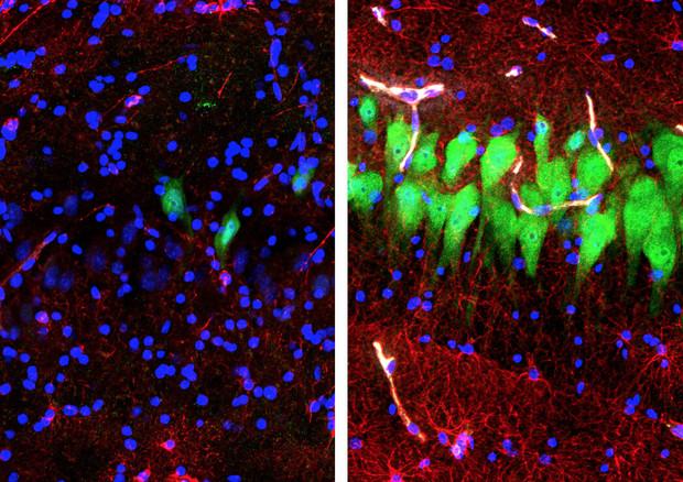 Cervelli di maiale riattivati dopo la morte: l'incredibile scoperta dell'Università di Yale