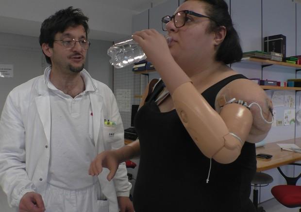 Protesi innovativa su una donna, 'per me nuova vita' © ANSA