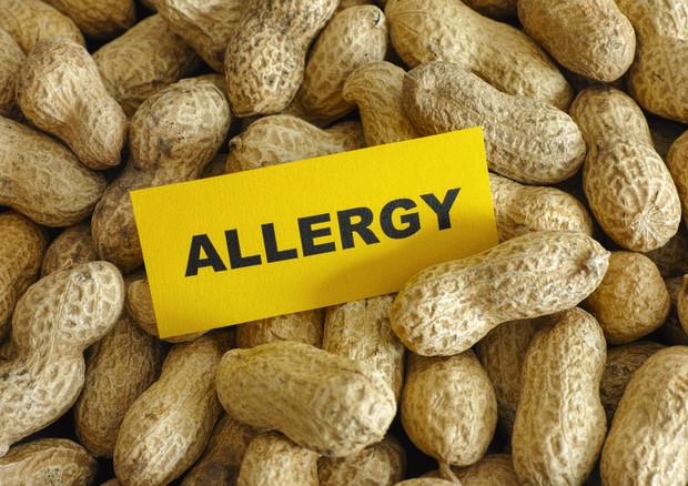 Studio mette in discussione la sicurezza della cosiddetta immunoterapia orale per le allergie alimentari © Ansa