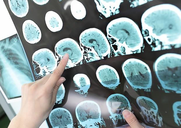 Messo a punto un test del sangue che potrebbe predire l'Alzheimer © Ansa