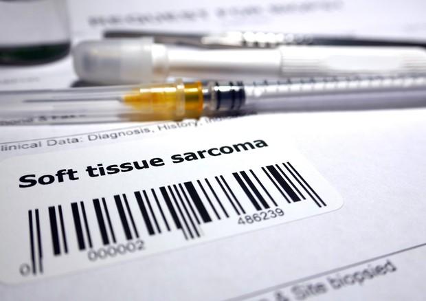 Sarcomi, diagnosi e interventi più precisi con hi-tech e 3D © Ansa