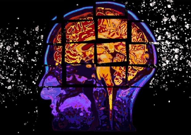 Un test basato sull'intelligenza artificiale, messo a punto al Mit, riesce a prevedere la progressione del morbo di Alzheimer nei due anni successivi (fonte: Christine Daniloff, MIT) © Ansa