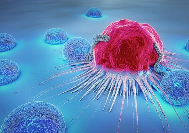 Cellule immunitarie che attaccano un tumore © Ansa