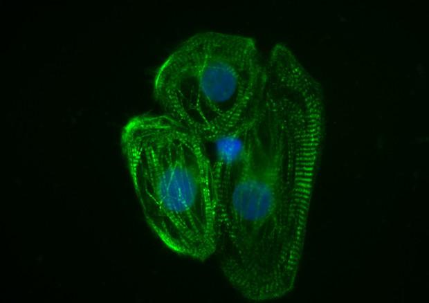 Cellule cardiache derivate da staminali indotte (fonte: Università di Brescia) © Ansa