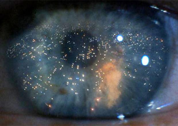 Distrofie retiniche,terapia genica attende approvazione Aifa © ANSA