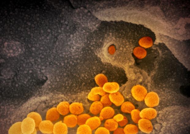 Una delle immagini del coronavirus SarsCov2 ottenute dal Niaid con il microscopio elettronico. le particelle virali sono colorate in arancio (fonte: NIAID-RML) © Ansa