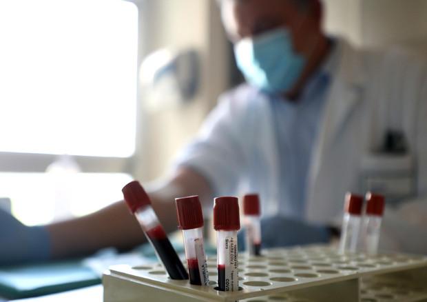 Entro giugno potrebbe arrivare il primo farmaco capace di combattere il coronavirus