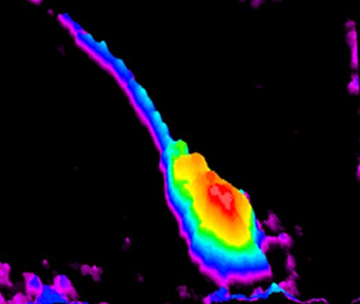 Spermatozoo osservato attraverso il liquido seminale grazie al nuovo laser (fonte: CNR)