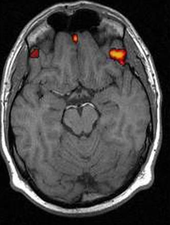 La radiografia degli  emisferi cerebrali in un'immagine d'archivio
