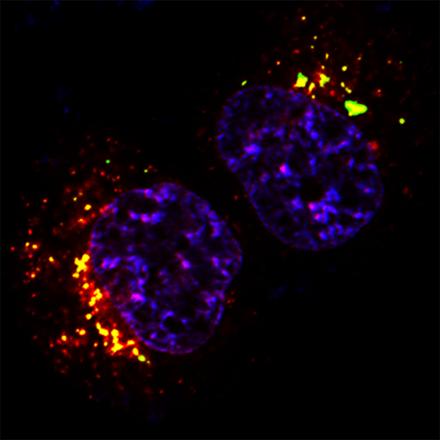 Cellule tumorali colpite sfruttando la loro stessa 'benzina'