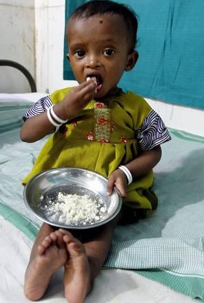 Accordo Fao-Oms su politiche contro malnutrizione