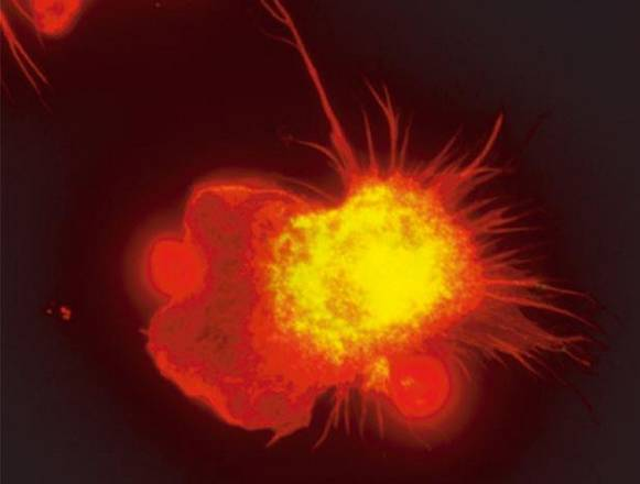 Un macrofago (fonte: Sieweke Lab)