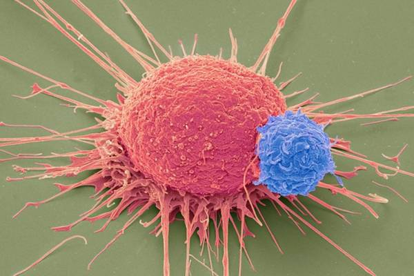 Le cellule T modificate con la Crispr per attaccare il cancro
