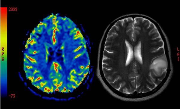 Aspirina Liquida Nuova Possibile Arma Contro Tumore Cervello Medicina Salute E Benessere Ansa It