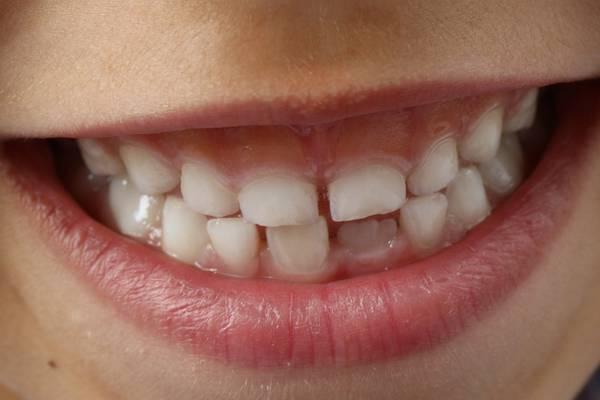 I denti possono ripararsi da soli, con le cellule staminali