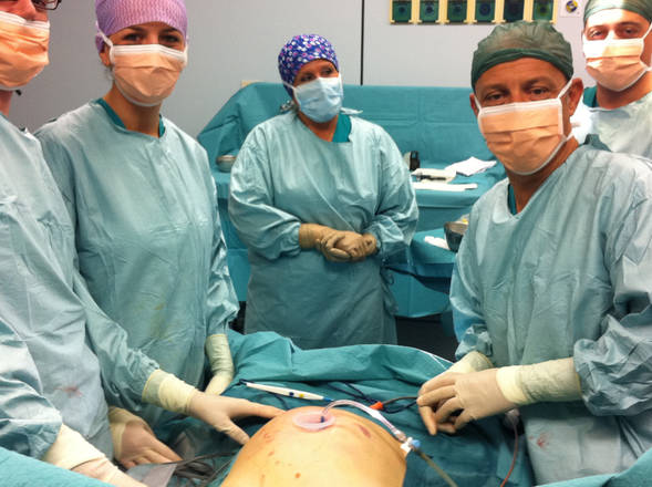 In calo protesi al seno