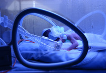 Un neonato prematuro in Terapia intensiva neonatologica (ANSA)