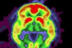Alzheimer, nuovo fallimento farmaco in test sull'uomo (ANSA)