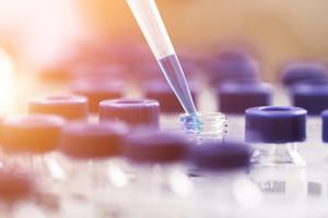 Sperimentazione in laboratorio (ANSA)