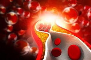 Il colesterolo (ANSA)
