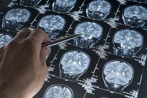 In Francia: test clinici 'selvaggi' su malati di Alzheimer (ANSA)